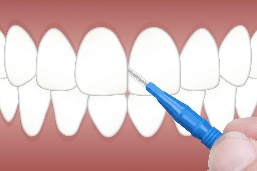 Centrum voor Tandheelkunde Breda tandarts behandelstoel