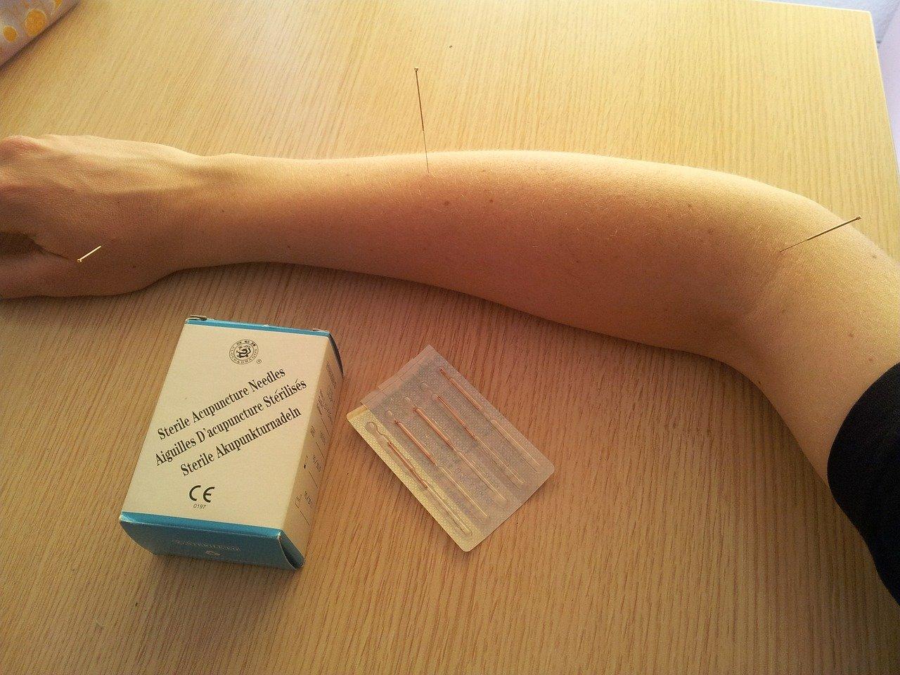 Helios fysiotherapie en revalidatie dry needling
