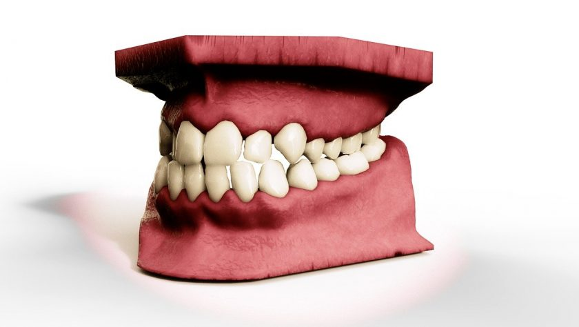 Hobbelink Mondzorg tandarts spoed