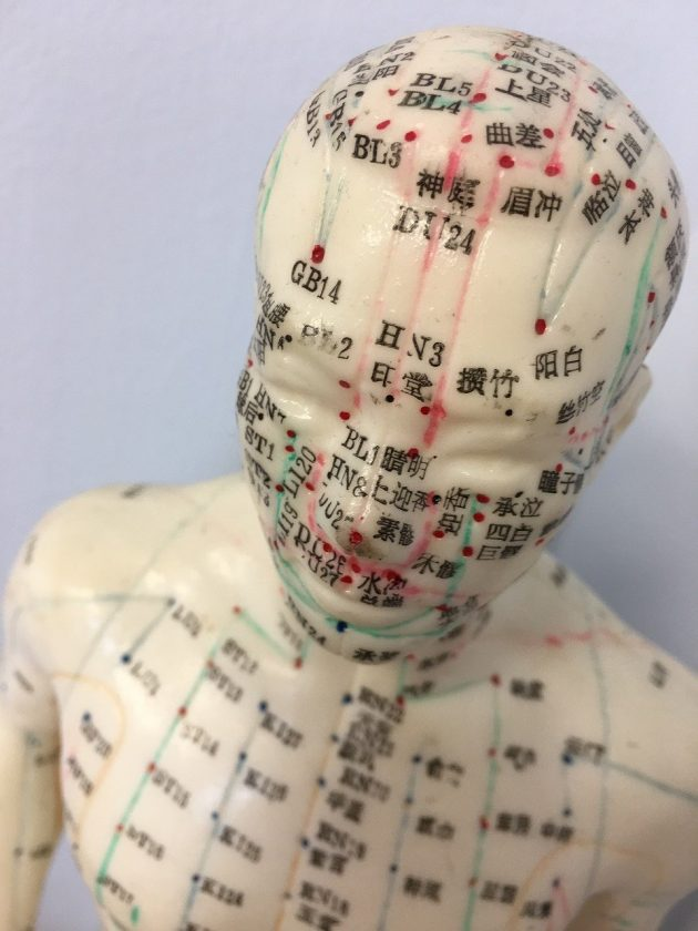 Rademaker Fysiotherapie dry needling