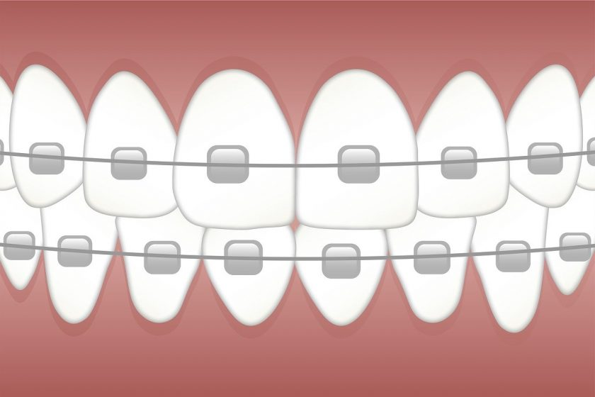 Tandarts J.C.F. van Erp tandarts spoed