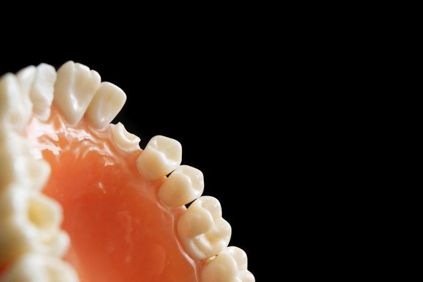 Beek Tandarts J W E van tandarts onder narcose