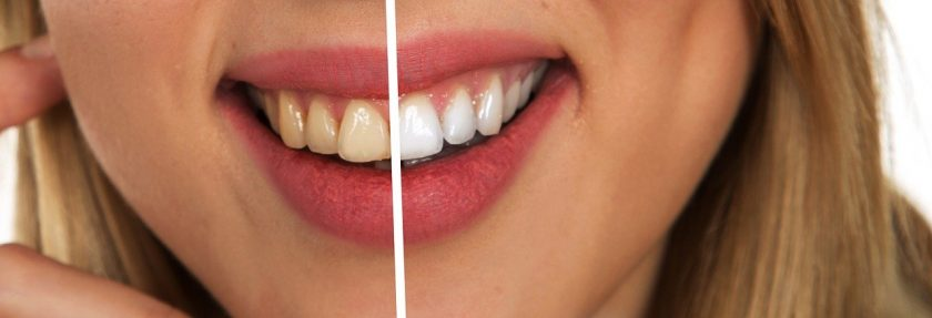 Beekmans Omega BV angst tandarts