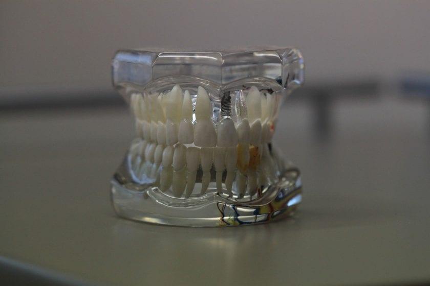 Bittermann D en Bittermann-ter Pelkwijk A tandarts lachgas