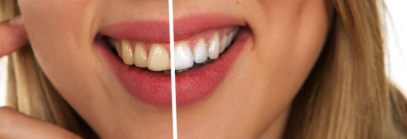 Centrum Mondzorg Deurne bang voor tandarts