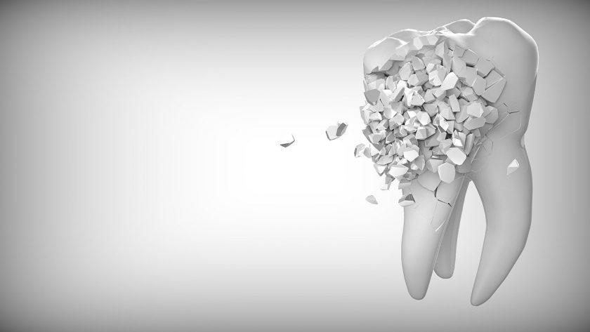 Crielaard M narcose tandarts kosten