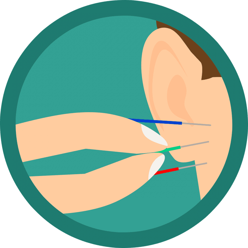 Curfs Fysio & Sport dry needling