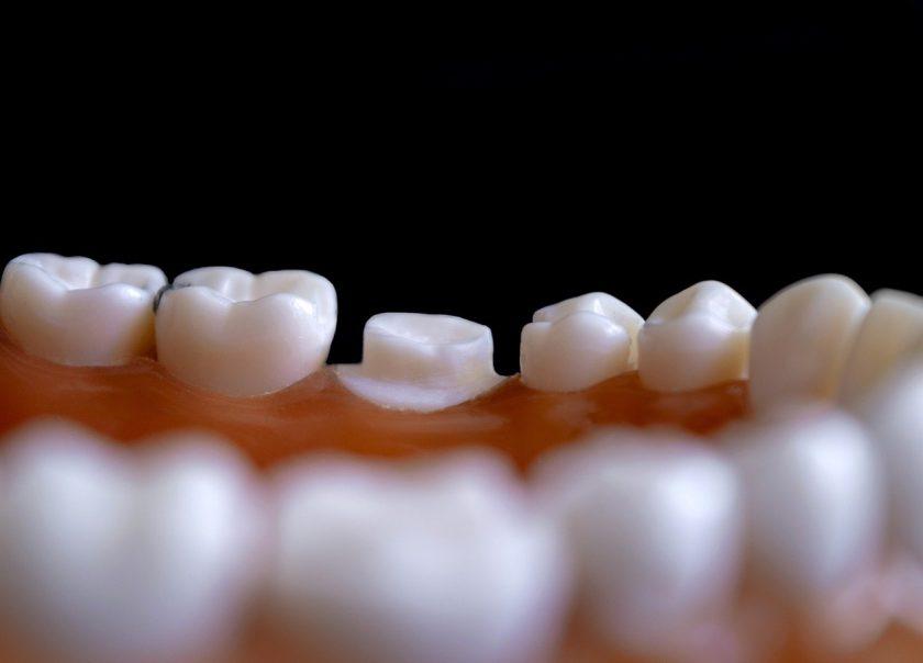 D.J. Lock Implantologie BV tandarts onder narcose