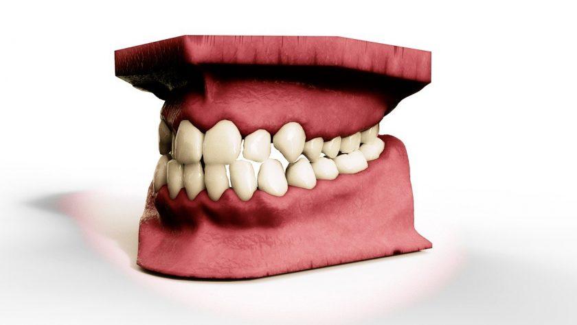 Dental Clinics Almelo bang voor tandarts