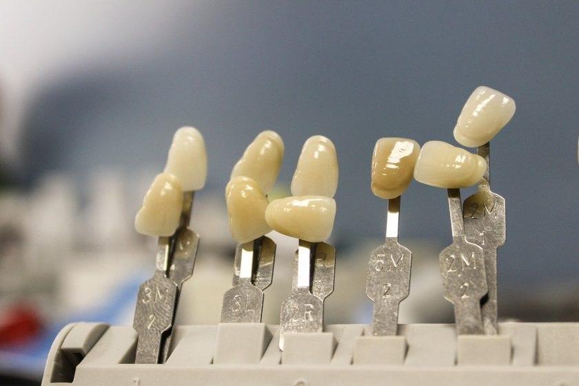 Deodora BV angst tandarts