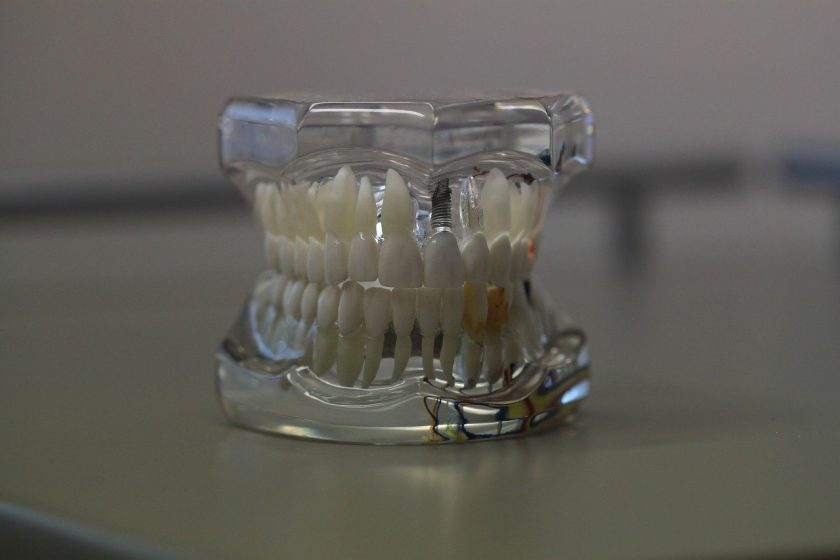 F M Smits tandarts onder narcose
