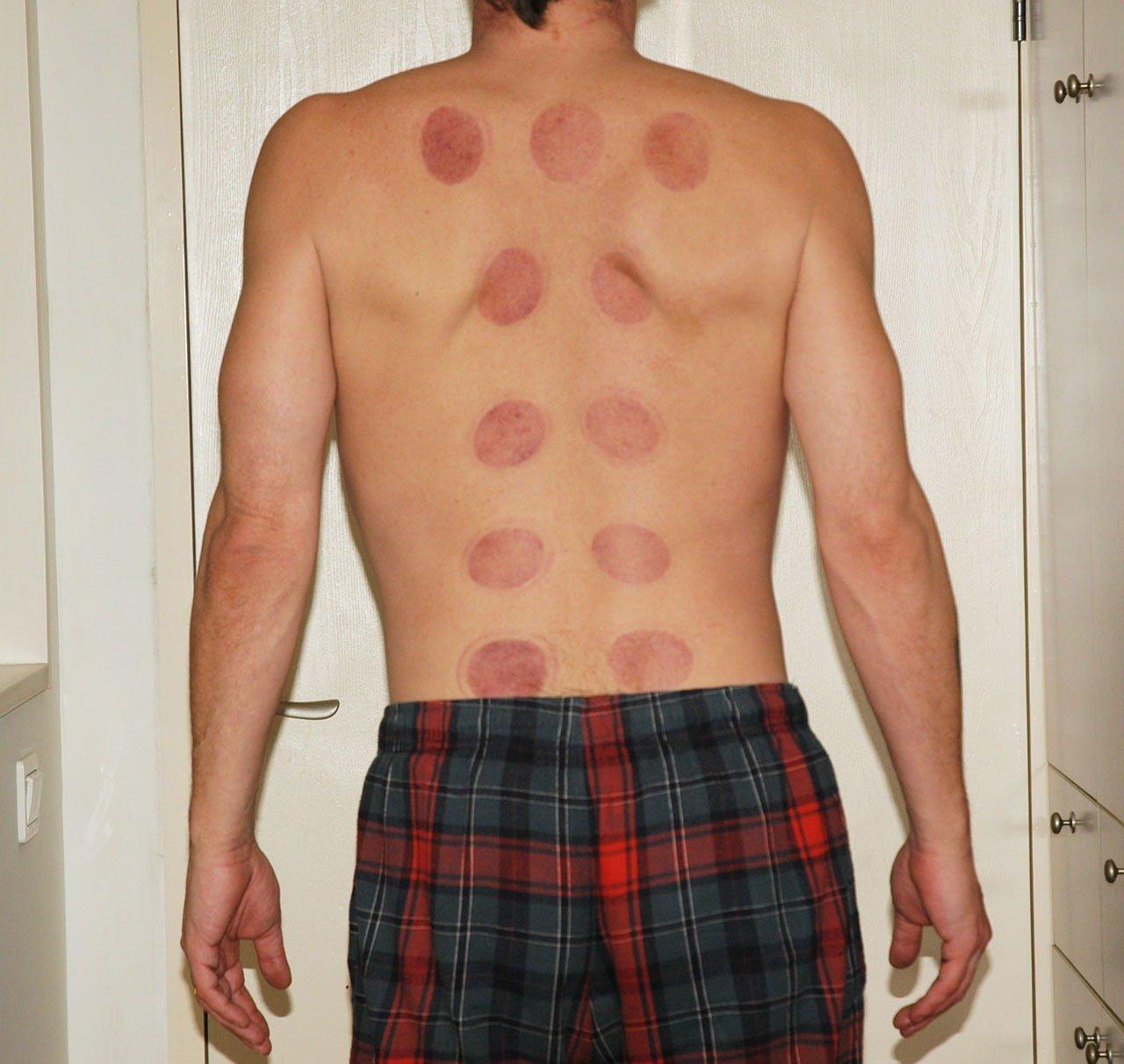 Fysio- en Manueletherapie Salden H A H massage fysio