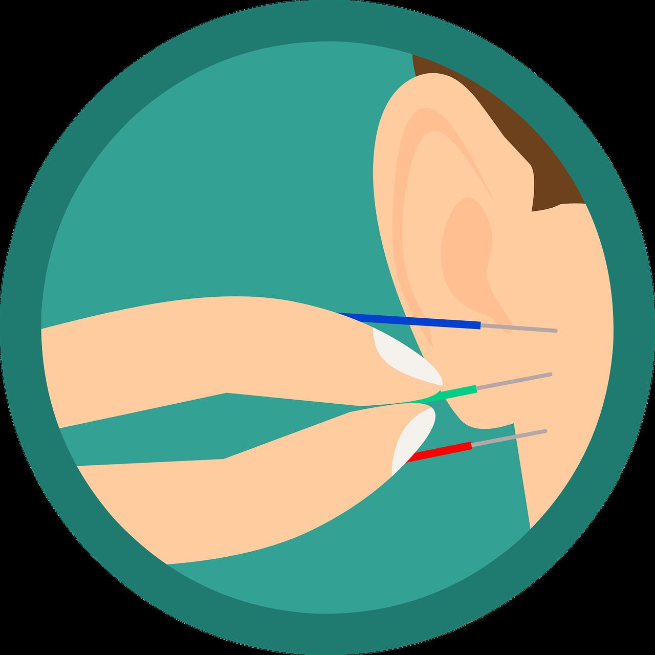Fysiotherapie Daniels dry needling
