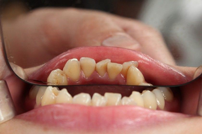 Hermann A wanneer spoed tandarts