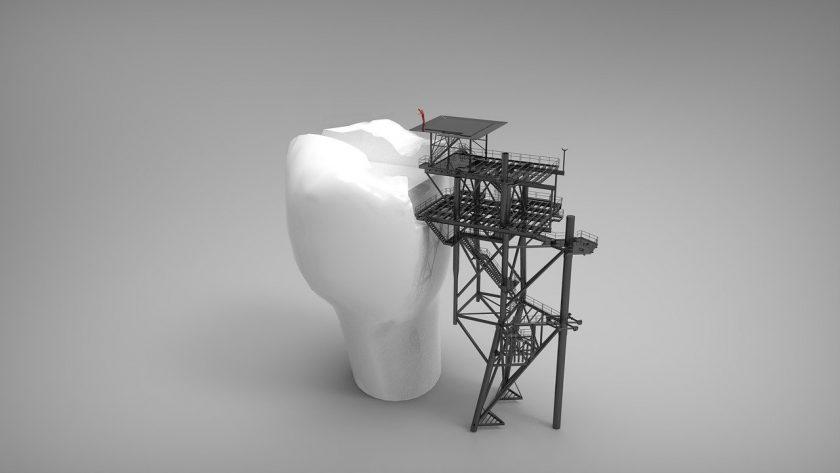 Kiezenklei BV tandarts behandelstoel