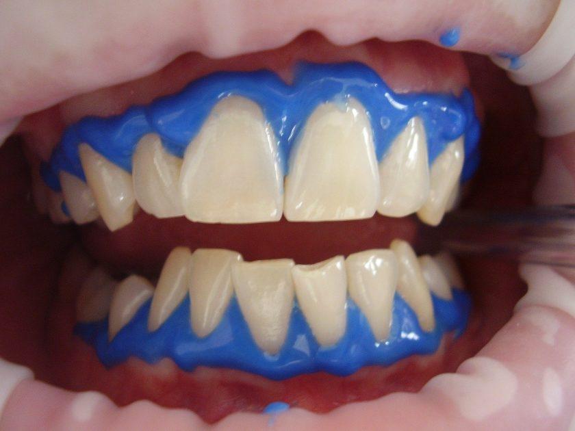 Landman tandarts onder narcose