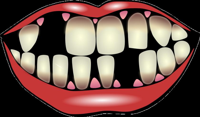 Meijer en Schildkamp Tandartsen bang voor tandarts