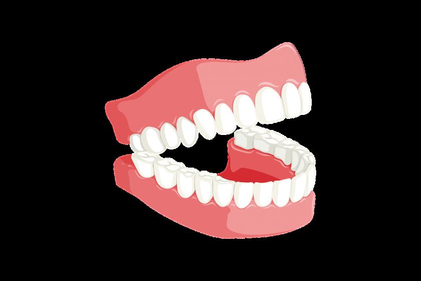 Natural White tandarts onder narcose
