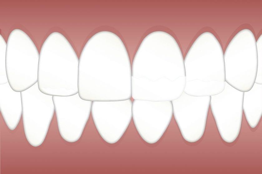 Schade Tandarts H C F tandarts weekend