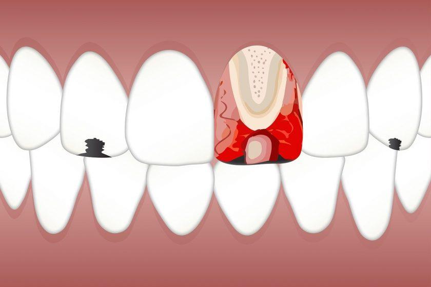 Stomp P tandartsen