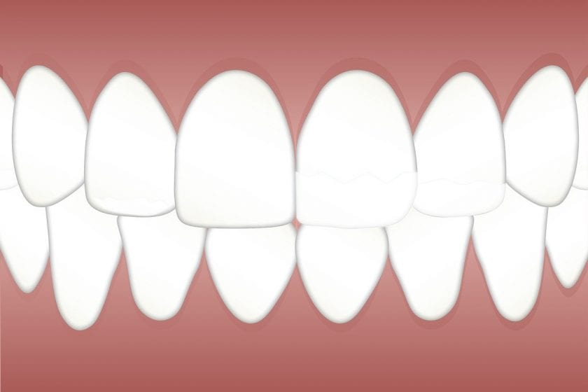 Tandarstenpost Hoensbroek wanneer spoed tandarts