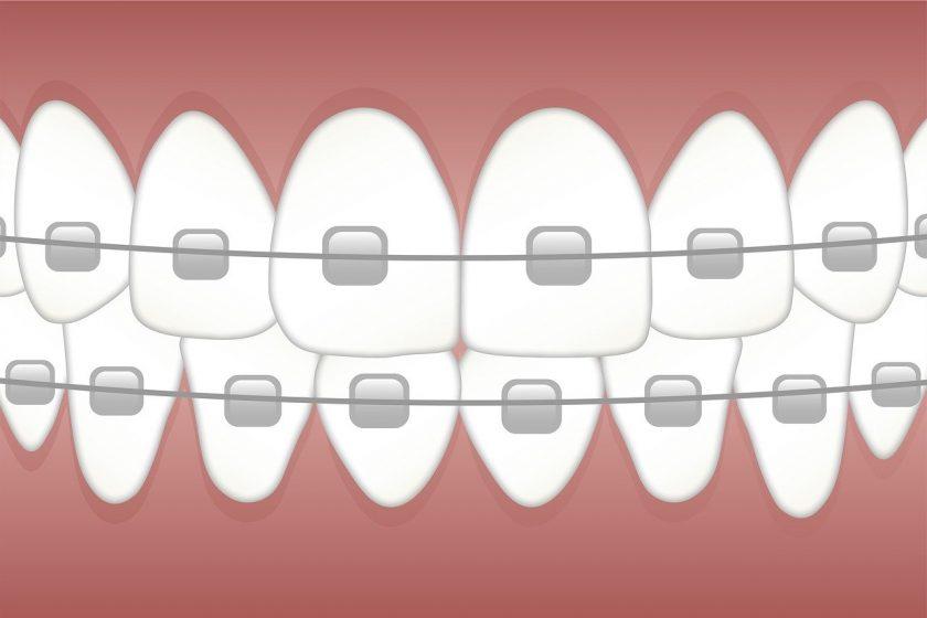 Tandarts Celeste Visser narcose tandarts