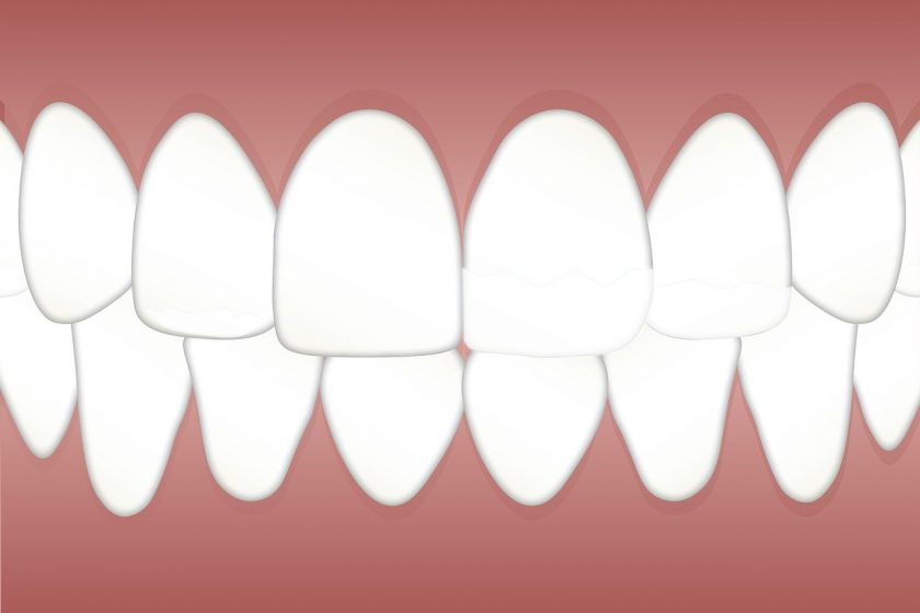 Tandarts Peek tandartsen