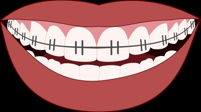 Tandarts Thiellier bang voor tandarts