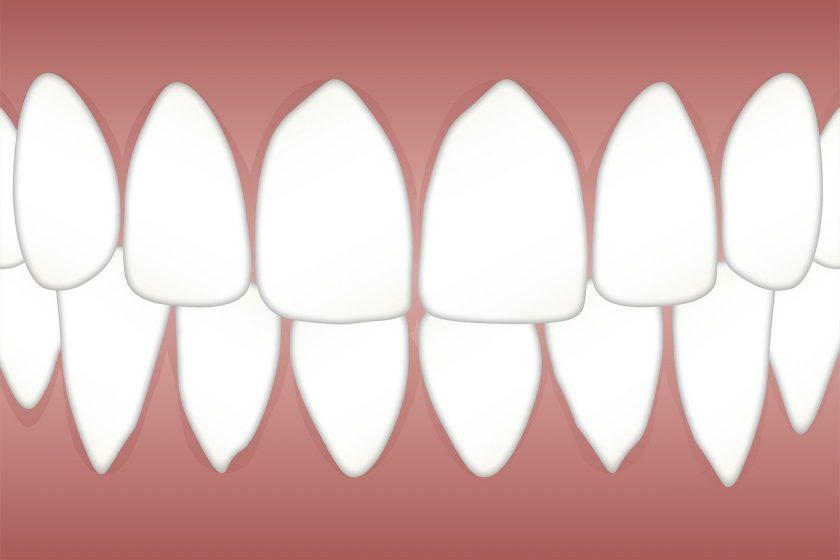 Tandartsen Collectief Goeverneurlaan bang voor tandarts