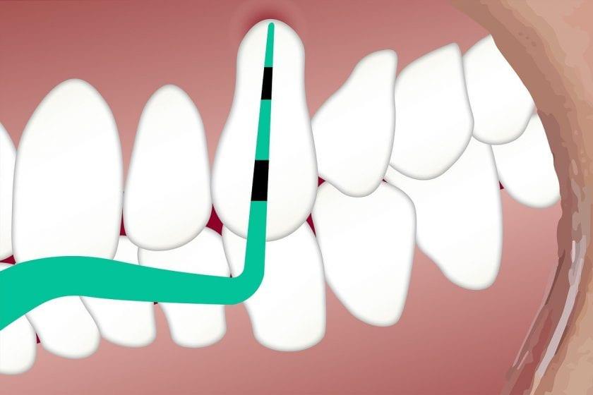 Tandartsenpraktijk Köhlen J W T M spoedeisende tandarts