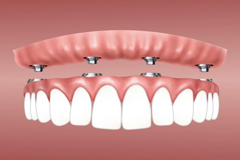 Tandartsenpraktijk Lexmond tandartsen