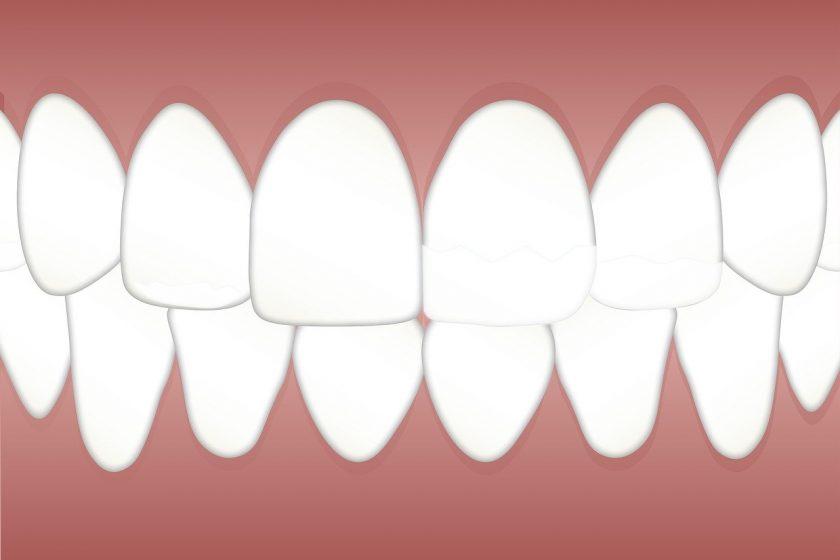 Tandartspraktijk van Dellen wanneer spoed tandarts