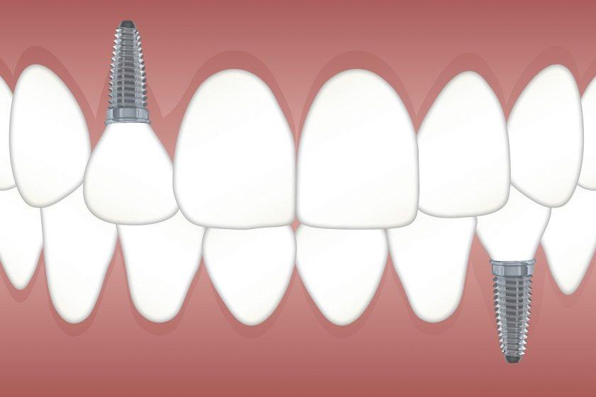 Tandheelkundigcentrum Qualident tandarts lachgas