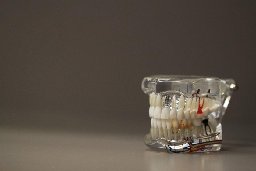 Tandzuiver tandarts lachgas