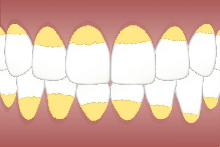 The K Y E M tandarts onder narcose