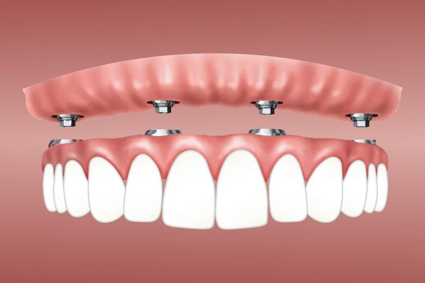 van Bergem tandarts tandarts weekend