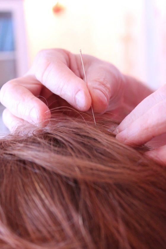 Veerman Fysiotherapie Michel dry needling