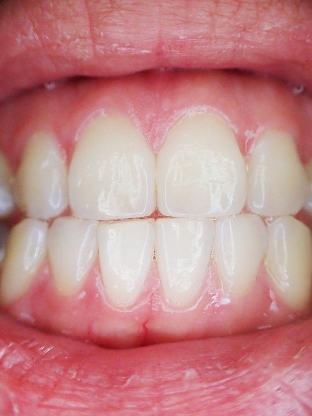 Tandarts praktijk Brachterbeek spoedhulp door narcosetandarts en tandartsen