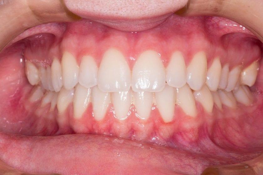 Tandarts praktijk Orden spoedhulp door narcosetandarts en tandartsen