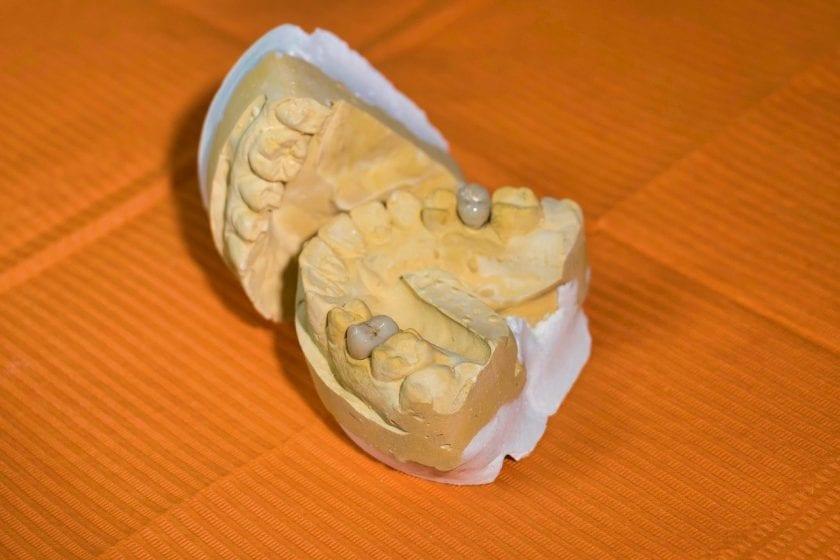 Tandarts praktijk Poortvliet spoedhulp door narcosetandarts en tandartsen