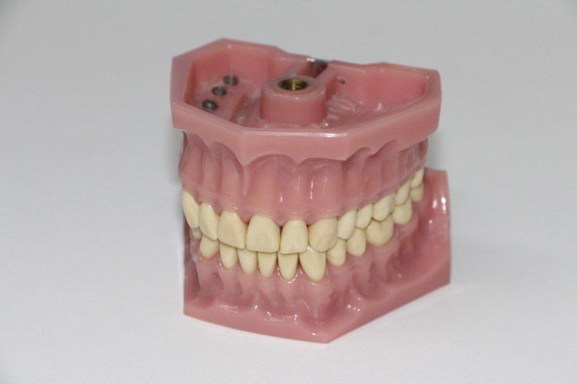 Tandarts praktijk Winsum spoedhulp door narcosetandarts en tandartsen