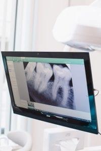 angst- en narcose tandarts in Augustinusga