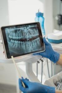 angst- en narcose tandarts in Noordbarge
