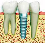 Centrum voor Tandheelkunde Gorinchem spoedeisende tandarts