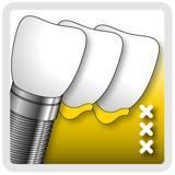 Kliniek voor Parodontologie Amsterdam (KVPA) spoedhulp tandarts