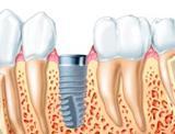 Eck Tandartsen Groepspraktijk Van tandarts weekend